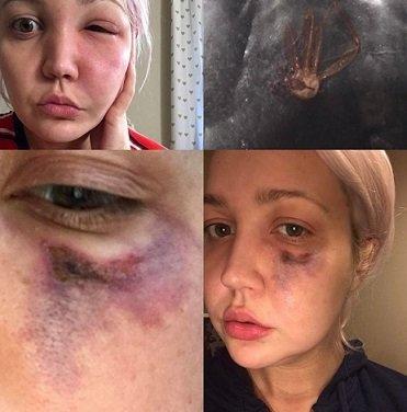 Meghan Linsey morsa da un ragno eremita marrone sul viso