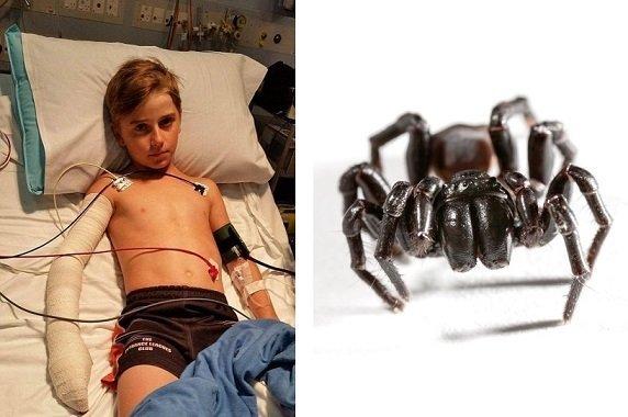 Ragazzo di 10 anni morso da uno dei ragni più velenosi al mondo