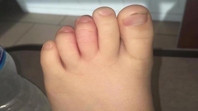 Bambino di 5 anni punto dal bruco Megalopyge opercularis
